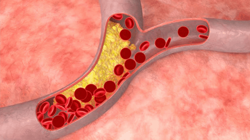 повишен холестерол