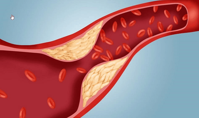 общ холестерол
