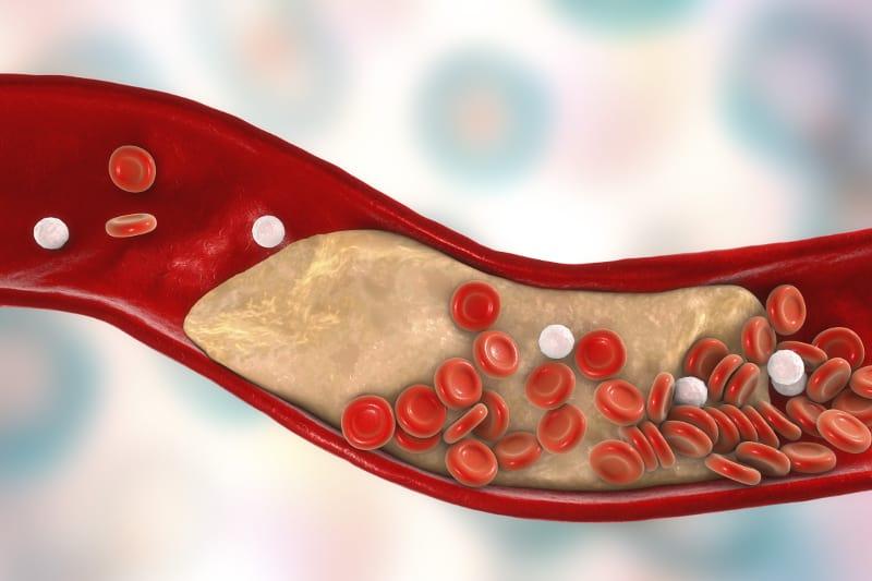 хиперхолестеролемия