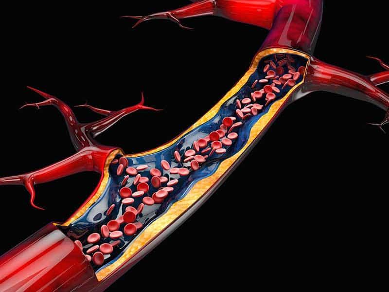 запушване на артериите